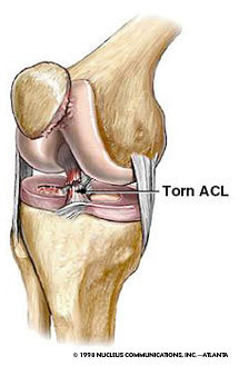 Acl_5